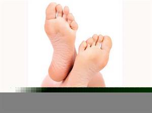 Beware of Athlete's Foot